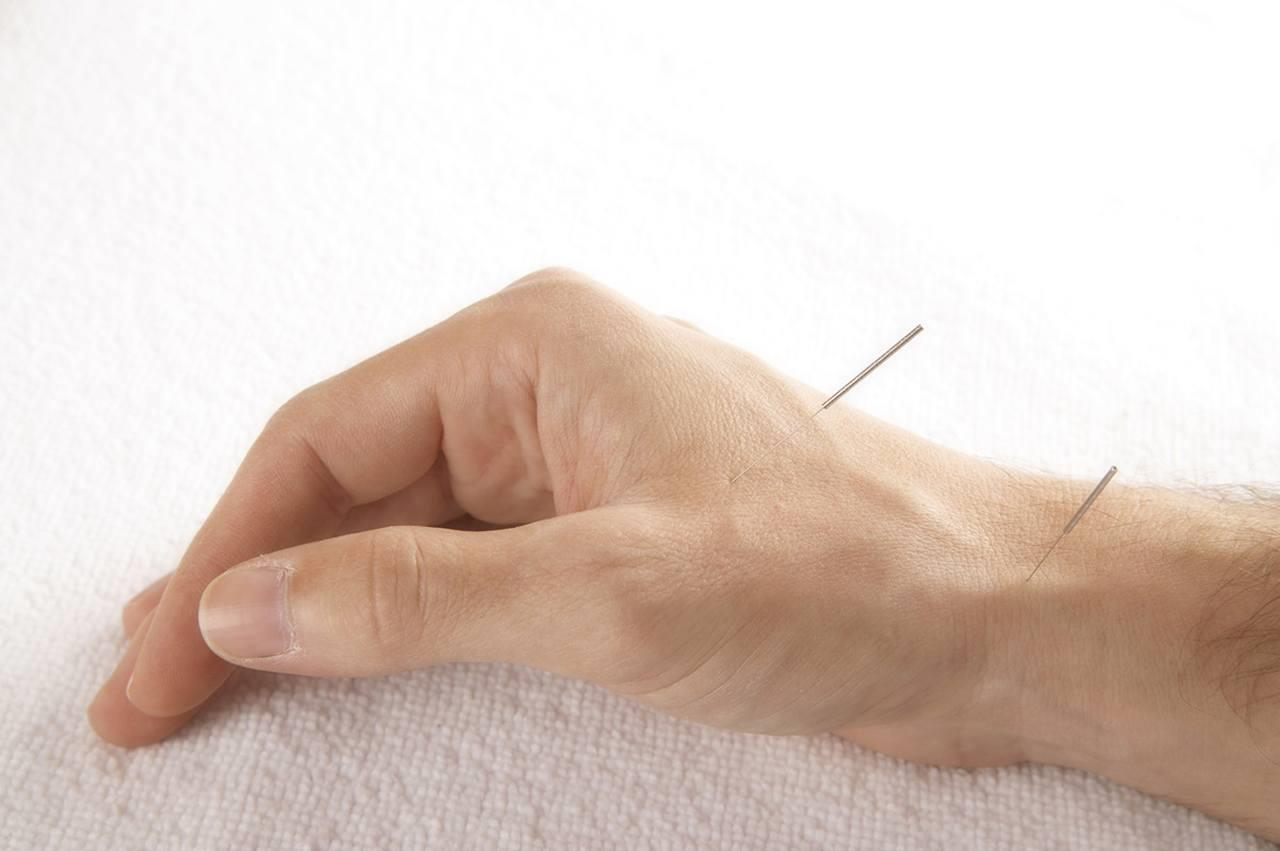 DNHS®: Dry Needling for Hypertonia and Spasticity